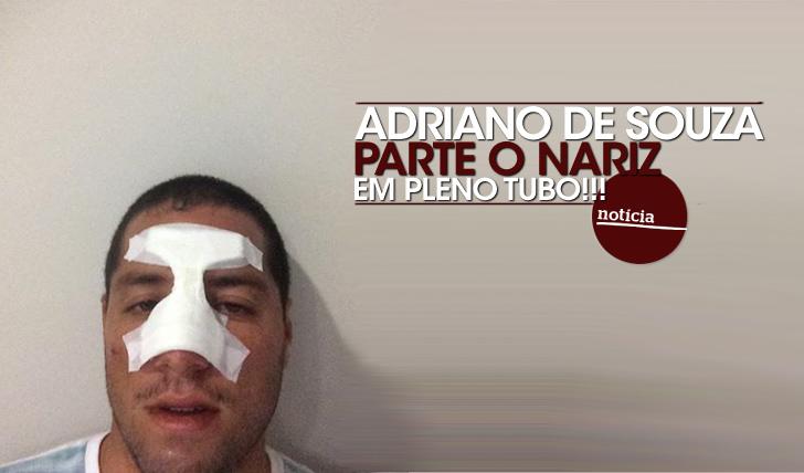 ADRIANO-DE-SOUZA-QUEBRA-O-NARIZ
