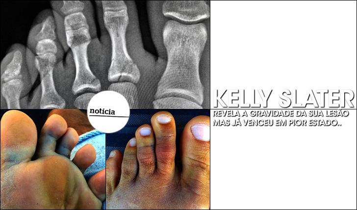 KELLY-SLATER-LESAO-2014